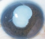 Clinical Pearls, Pre-Operative Evaluation of the Mature Cataract